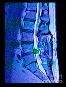 Herniated Disc Print by Medical Body Scans