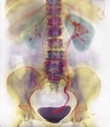 Ureter Prints - Kidney Stone In Ureter Print by
