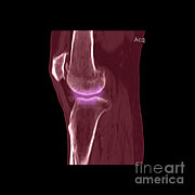 Frontal Bones Art - Knee Showing Osteoporosis by Medical Body Scans