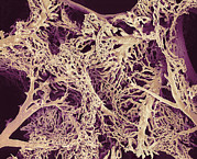 Circulatory System Posters - Liver Blood Vessels, Sem Poster by Susumu Nishinaga