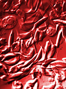 Micrograph Art - Lm Of Sickle Cell Anemia by Science Source