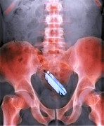 Prank Posters - Mobile Phone In A Persons Rectum, X-ray Poster by