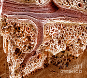 Sem Posters - Mouse Lung, Sem Poster by Science Source
