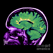 Cerebrum Posters - Mri Of Multiple Sclerosis Poster by Medical Body Scans
