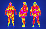 Thermography Framed Prints - Obese Woman, Thermogram Framed Print by Tony Mcconnell
