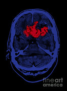 Lobe Framed Prints - Oligodendroglioma Framed Print by Medical Body Scans