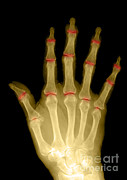 X-ray Image Art - Osteoporosis And Degenerative Arthritis by Medical Body Scans
