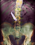 Razor Prints - Swallowed Razor And Razor Blades, X-ray Print by Du Cane Medical Imaging Ltd