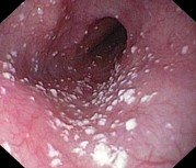 Candidiasis Posters - Thrush In The Oesophagus Poster by Gastrolab