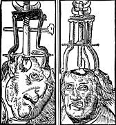Intervention Prints - Trepanning, 1525 Print by Science Source