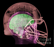 Football Safety Posters - X-ray Of Head In Football Helmet Poster by Ted Kinsman