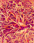 Circulatory System Posters - Blood Vessels, Sem Poster by Susumu Nishinaga