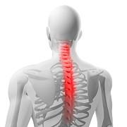 Back Pain, Conceptual Artwork Print by Sciepro