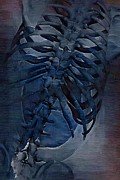 Physical Body Framed Prints - Torso Skeleton Framed Print by Joseph Ventura