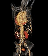 3-d Metal Prints - Aortic Aneurysm Ct Scan Metal Print by Zephyr