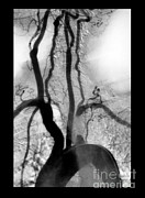 Steal Photos - Aortic Arch Angiogram by Medical Body Scans