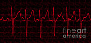 Colorized Prints - Atrial Fibrillation Print by Science Source