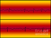 Flutter Art - Atrial Flutter & Normal Heart Beat by Science Source