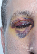 Swollen Photos - Black Eye by Photo Researchers, Inc.