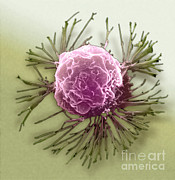 Breast Cancer Art - Breast Cancer Cell, Sem by Science Source