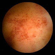 Inflammation Photos - Crohns Disease Inflammation, Pill Camera by David M. Martin, Md