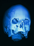 Depressed Prints - 3-d Ct Scan Of Skull, With Fracture Above Eye Print by