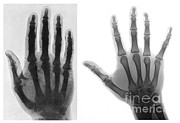 Comparison Framed Prints - Early And Modern Hand X-rays Framed Print by Medical Body Scans