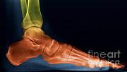 Ted Kinsman - Foot X-ray