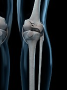 Human Joint Art - Knee Anatomy, Artwork by Sciepro