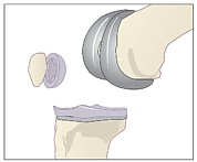 Component Photos - Knee Replacement, Artwork by Peter Gardiner