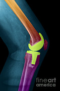 Total Knee Replacement Photos - Knee Replacement X-ray by Ted Kinsman