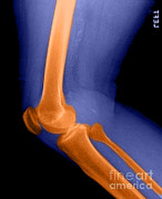 X-ray-x-ray Image Art - Lateral X-ray Of The Knee by Medical Body Scans