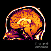 Brain Prints - Mri Of Brain Print by Medical Body Scans