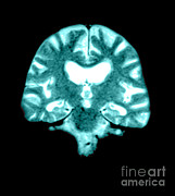 Alzheimers Prints - Mri Of Brain With Alzheimers Disease Print by Medical Body Scans