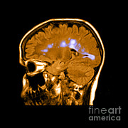 Mri Of Multiple Sclerosis Print by Medical Body Scans