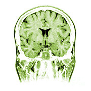 Normal Coronal Mri Of The Brain Print by Medical Body Scans