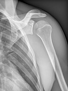 X-ray Image Art - Normal Shoulder, X-ray by Zephyr