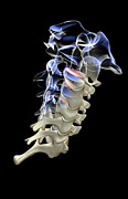 Cervical Vertebrae Posters - The Cervical Vertebrae Poster by MedicalRF.com