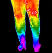 Differences Posters - Varicose Veins, Thermogram Poster by Dr. Arthur Tucker