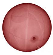Ted Kinsman - X-ray Of A Basketball