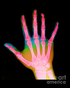 Skeleton Hand Framed Prints - X-ray Of A Hand Framed Print by Medical Body Scans