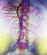 Arteries Framed Prints - X-ray Of Arteries Framed Print by