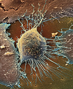 Cancer Art - Cervical Cancer Cell, Sem by Steve Gschmeissner