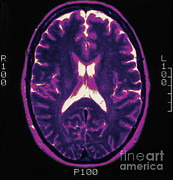 Brain Prints - Mri Of Normal Brain Print by Science Source