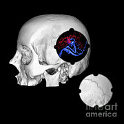 Brain Surgery Prints - 3d Color Enhanced Image Of Skull And Avm Print by Medical Body Scans