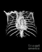 3d Imaging Framed Prints - 3d Cta Of Heart And Chest Framed Print by Medical Body Scans