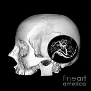 Brain Surgery Posters - 3d Image Of Skull And Brain Avm Poster by Medical Body Scans