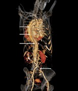 3-dimensional Framed Prints - Aortic Aneurysm Ct Scan Framed Print by Zephyr