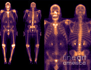 Featured Framed Prints - Bone Scans Framed Print by Medical Body Scans