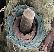 Irs Photo Posters - Hair Follicle, Sem Poster by Steve Gschmeissner